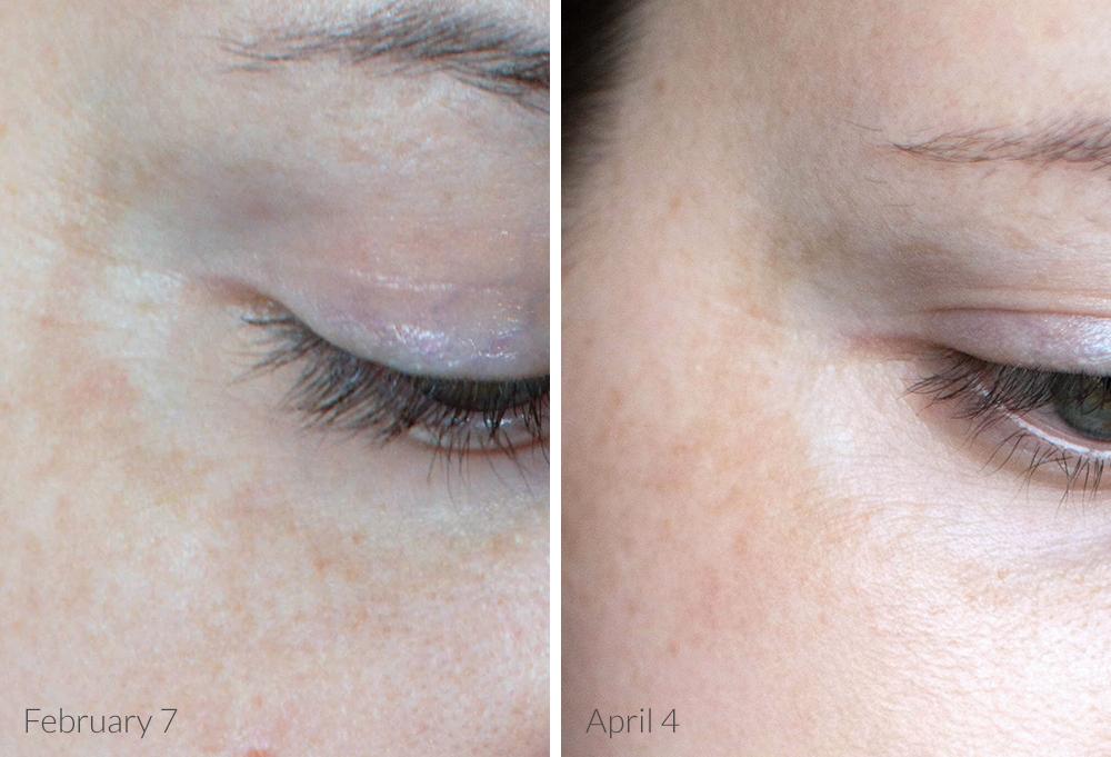 skinceuticals c e ferulic & skin discoloration corrector